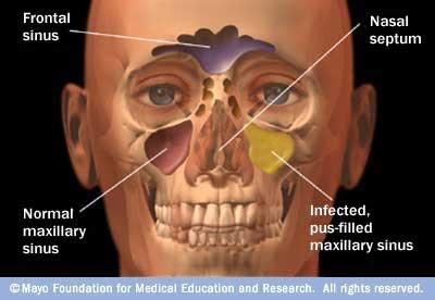 info-sinus